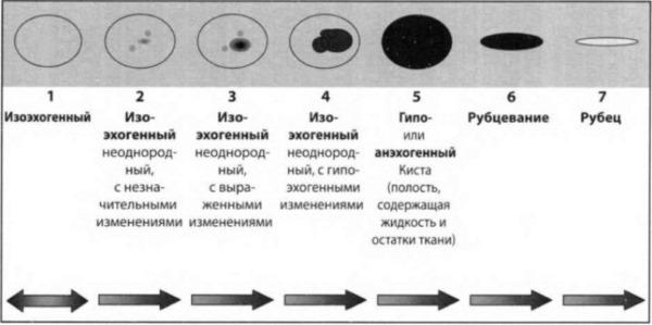 Изоэхогенность