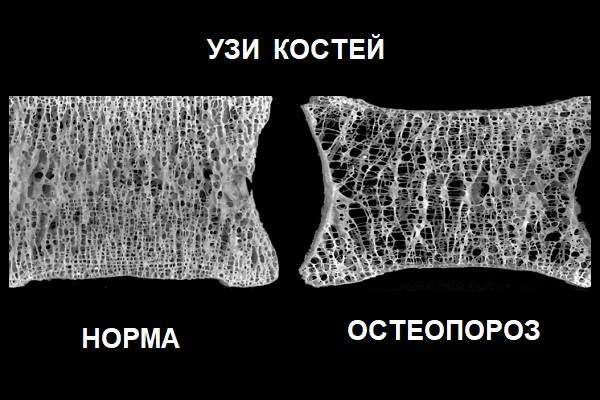 Норма и остеопороз на УЗИ