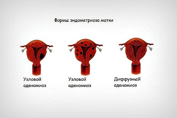 Формы эндометриоза матки