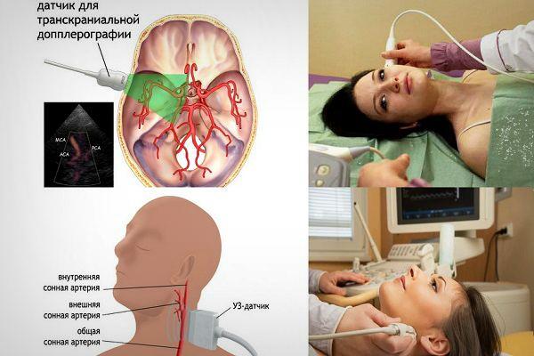 Ультразвуковая допплерография брахиоцефальных артерий