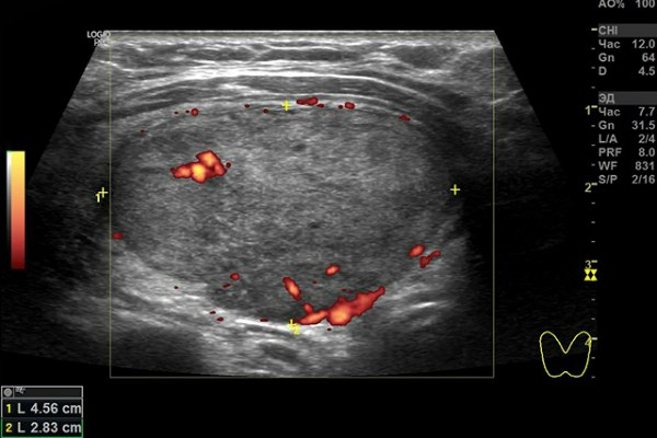 Аденома щитовидной железы (фолликулярная) на УЗИ