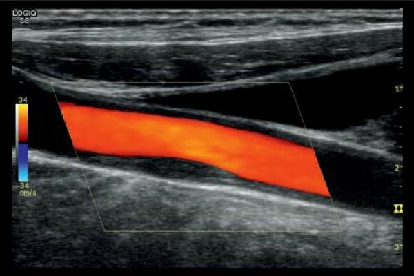 Атеросклероз сосудов нижних конечностей на УЗИ