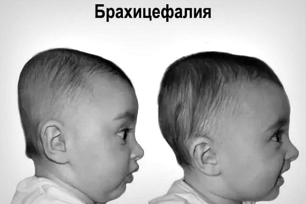 Брахицефалическая форма черепа