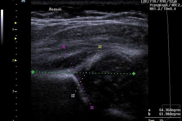 Норма тазобедренного сустава у новорожденного