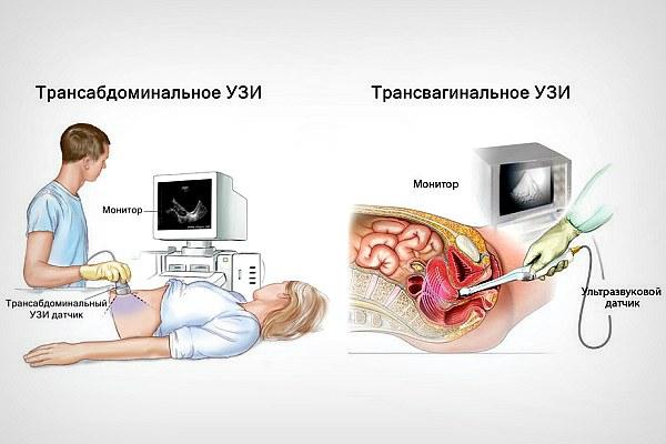 Техника проведения УЗИ матки