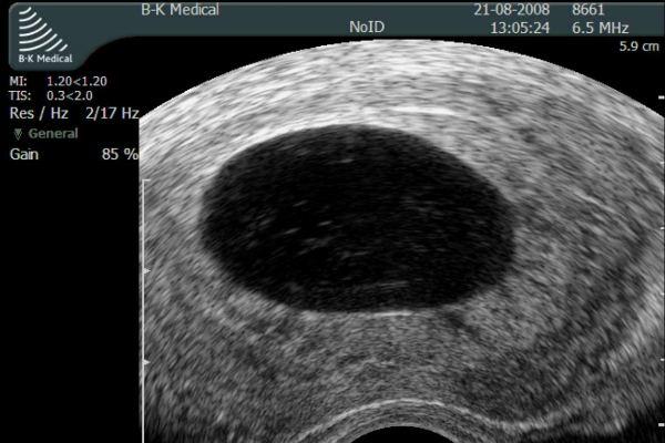 Анэмбриония плодного яйца