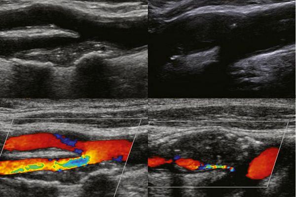 Атеросклеротическая бляшка на УЗИ с Допплером