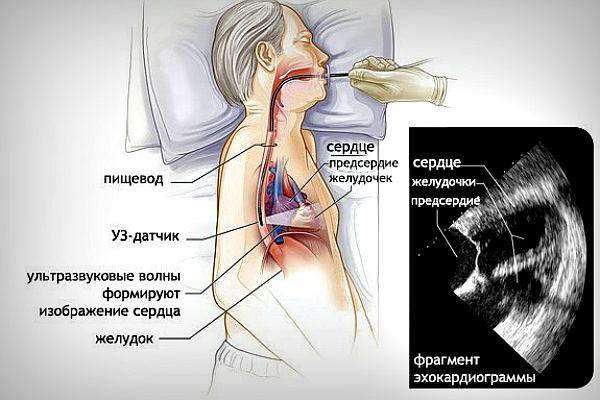 Чреспищеводная эхокардиография сердца