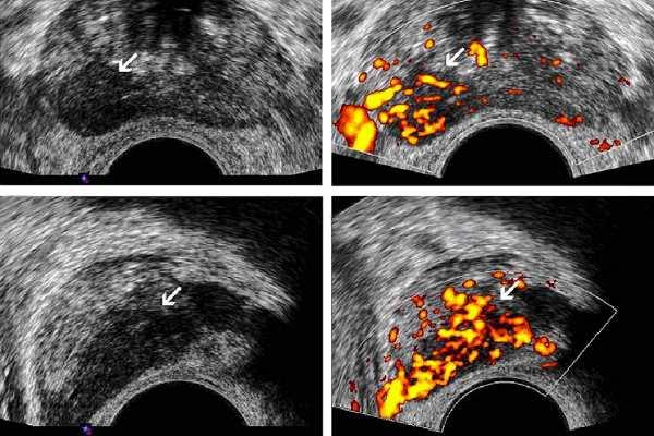 Опухоль предстательной железы УЗИ с Допплером