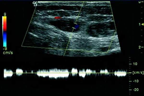 Венозная мальформация (ангиодисплазия) на УЗИ