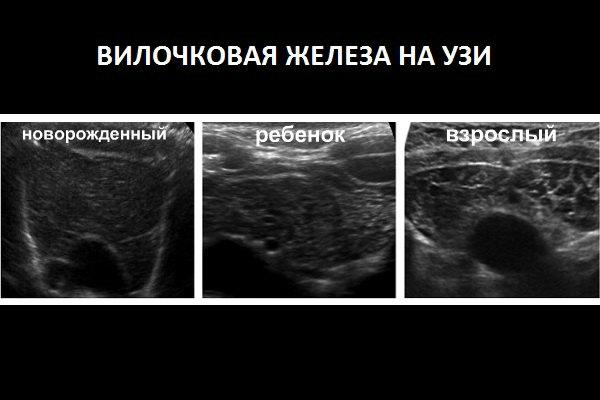 Вилочковая железа на УЗИ у детей и взрослых