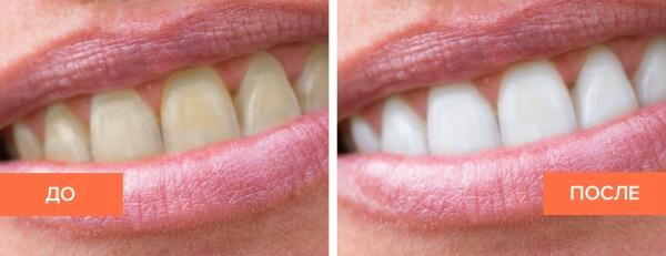 До и после ультразвуковой чистки зубов