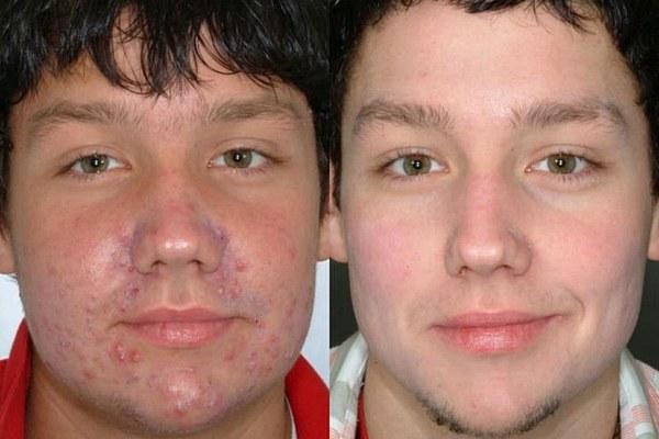 Лицо до и после чистки третий результат