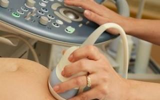 Диагностика замершей беременности (УЗИ)