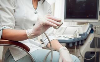 Что показывает УЗИ-диагностика паховой грыжи, как подготовиться и как проходит процедура