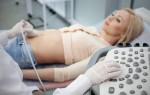 Как делают УЗИ кишечника взрослым и детям, что оно показывает в норме и при болезни