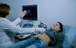 Что такое абдоминальное УЗИ и какие смотрят органы: подготовка, проведение