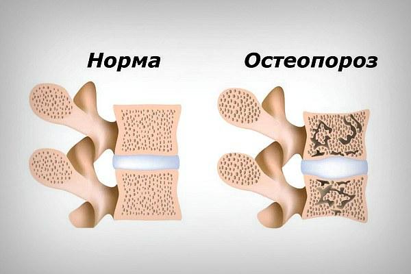 Остеопороз и здоровая кость