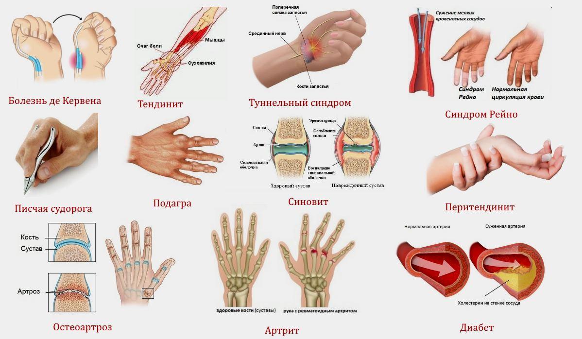 Возможные болезни суставов