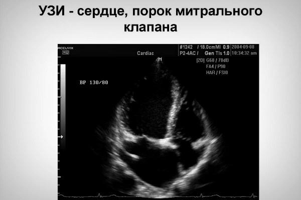 Врожденный порок сердца на УЗИ