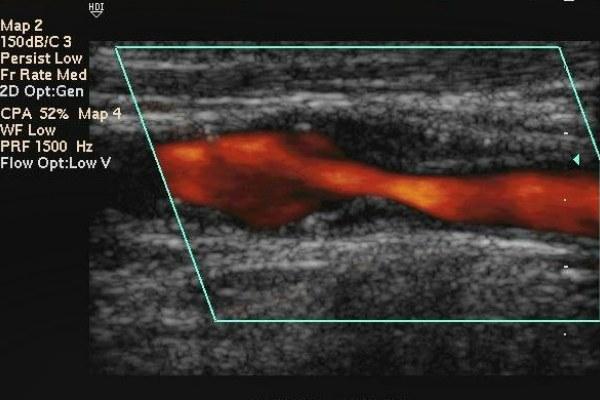 Атеросклероз мозговых сосудов на УЗИ