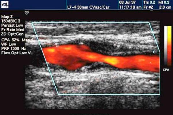 Атеросклероз на УЗИ