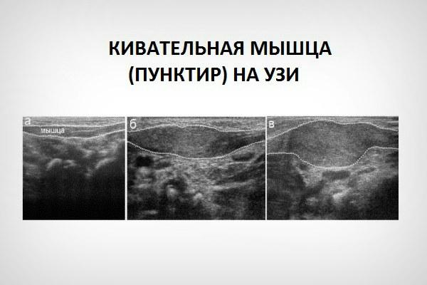 Кивательная мышца на УЗИ