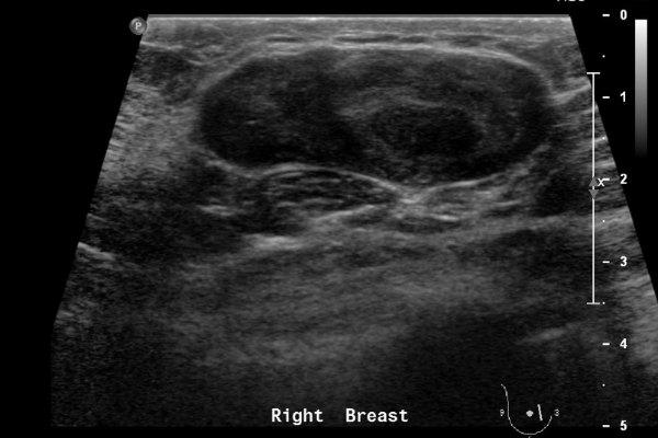 Листовидная фиброаденома на УЗИ