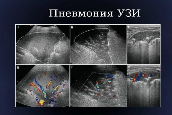 Пневмония на УЗИ