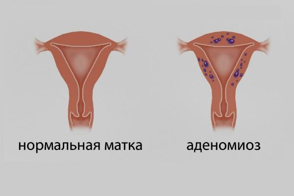 Аденомиоз и здоровая матка