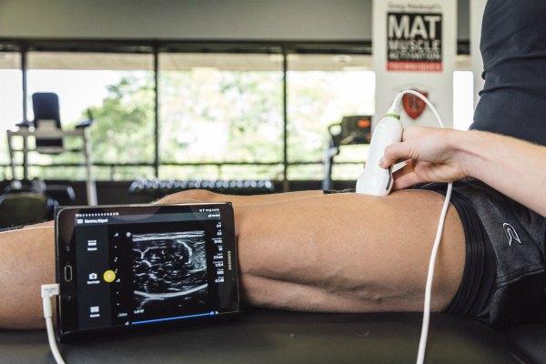 Ультразвуковая диагностика мышц