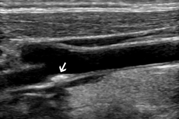 Атеросклеротическая бляшка на УЗИ