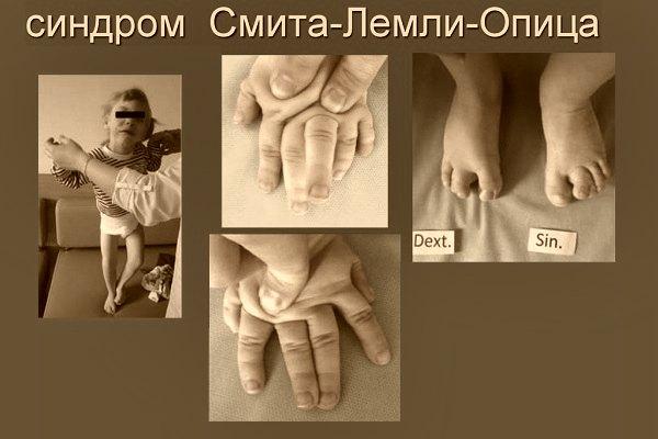 Синдром Смита-Лемли-Опитца