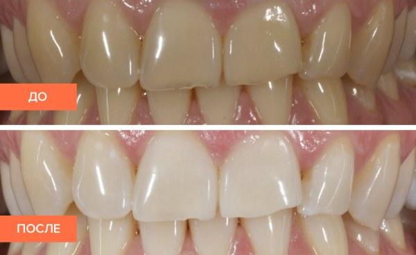 Ультразвуковая чистка зубов до и после результаты