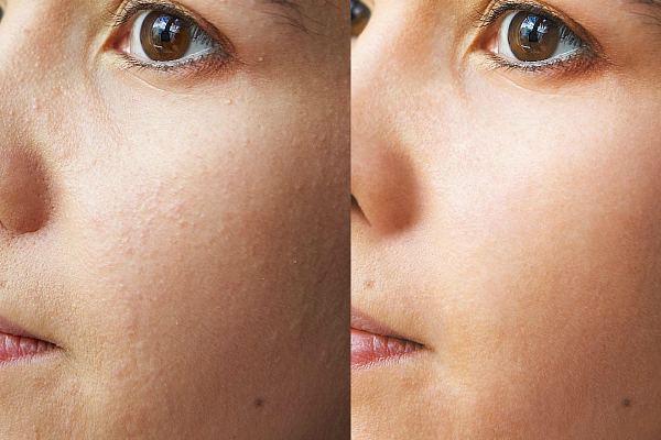 Лицо до и после чистки первый результат