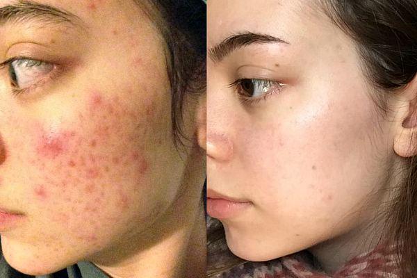 Лицо до и после чистки второй результат